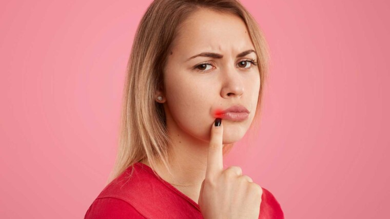 Mouth Ulcers and Treatment